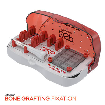 <p><strong>Bone</strong> <strong>Grafting</strong> Fixation</p>